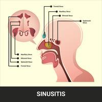 Ilustração vetorial de sinusite com informações detalhadas vetor