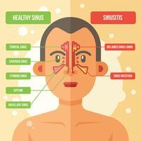 Ilustração vetorial Sinus