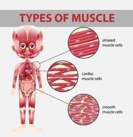 tipos de diagrama de células musculares