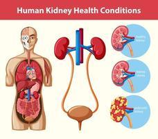 infográfico de condições de saúde de rim humano vetor