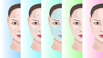 rosto de mulher passo a passo tratamento da acne vetor