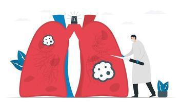 médico incisa câncer morto ao paciente em tratamento. conhecimento sobre o mês de conscientização do câncer de pulmão, novembro. ilustração em vetor plana isolada no fundo branco.