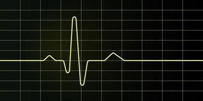 tela e gráfico de eletrocardiograma vetor