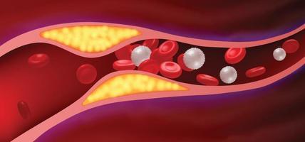 artérias com gordura obstruída que causa coágulos sanguíneos. vetor