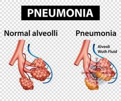diagrama mostrando pneumonia em fundo transparente vetor