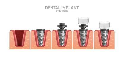 estrutura do implante dentário e etapas de colocação completa em estilo realista. abutment, parafuso. gengiva. vetor