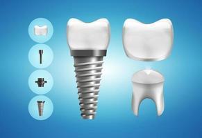 estrutura de implante dentário e restauração de coroa em estilo realista. medicamente preciso. ilustração vetorial vetor