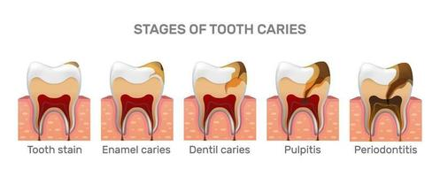 estrutura de cárie dentária e etapas de colocação completa em estilo realista. mancha, cárie do esmalte, dentila, pulpite, periodontite. gengiva. ilustração do vetor 3d.