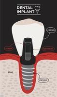 estrutura do implante dentário. infográfico educativo médico. ilustração vetorial de informação de implante dentário vetor