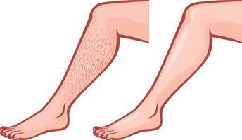 perna antes e depois da depilação vetor