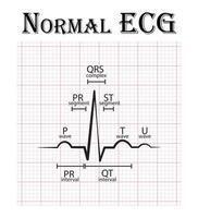 gráfico de eletrocardiograma ecg normal vetor