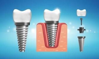 estrutura de implante dentário em estilo realista vetor