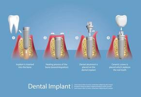 dentes humanos e conjunto de implantes dentários vetor