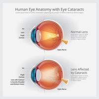 ilustração vetorial de anatomia ocular com anormalidades oculares vetor