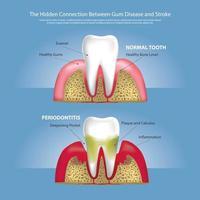 ilustração vetorial de estágios de dentes humanos de doença gengival vetor