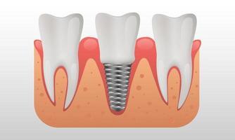 estrutura de implante dentário dentes humanos e ilustração vetorial de implante dentário vetor