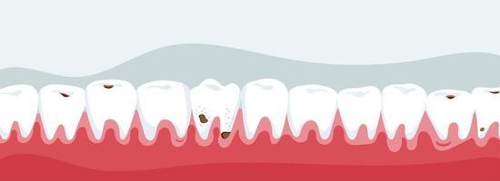 mandíbula com cárie dentária vetor