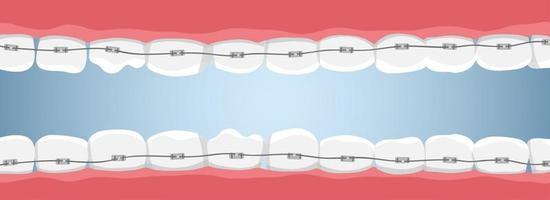banner com dentes e aparelho vetor