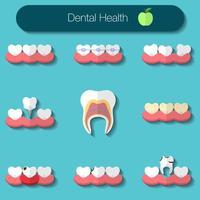 ilustração em vetor design plano de atendimento odontológico de heathy theeth, cárie, sistema de aparelho, implantação e outros ícones de saúde bucal