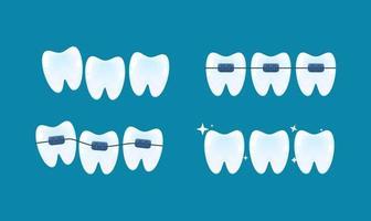 alinhamento dos dentes e correção da mordida com a ajuda do sistema de aparelhos vetor