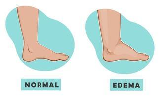 pé e tornozelo inchados e pé normal. ilustração vetorial da doença vetor