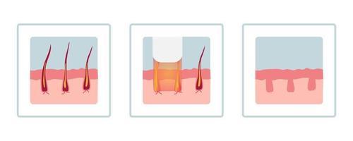 conceito de depilação a laser com áreas da pele e pelos. vetor