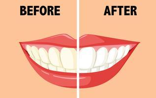 Antes e depois de escovar os dentes vetor