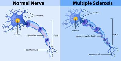 Nervo normal e esclerose múltipla vetor