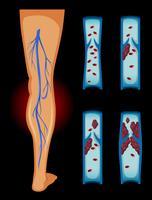Coágulo de sangue na perna humana vetor