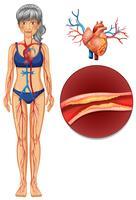 Um sistema vascular humano vetor