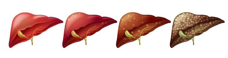 Diferentes estágios do fígado humano vetor