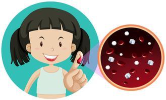 Uma garota tendo um exame de sangue vetor