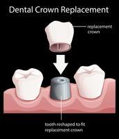 Um substituto da coroa dentária vetor
