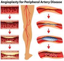 Diagrama mostrando angioplastia para doença arterial periférica vetor