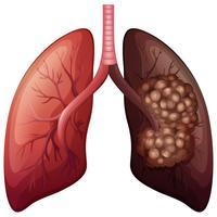 Câncer normal de pulmão e pulmão vetor