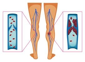 Diagrama mostrando o coágulo de sangue nas pernas humanas vetor