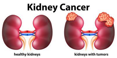 Diagrama mostrando câncer renal em humanos vetor
