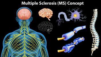 Diagrama mostrando o conceito de esclerose múltipla vetor