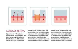 conceito de depilação a laser vetor