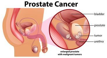 Diagrama do câncer de próstata vetor