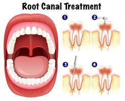 Vetor dental do tratamento do canal radicular