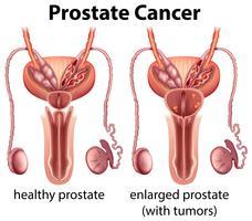 Comparação de próstata saudável e câncer vetor