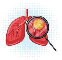 Câncer nos pulmões humanos vetor