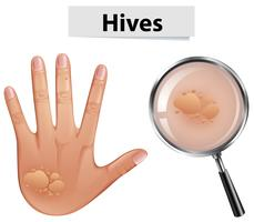 Um vetor de colmeias na pele humana