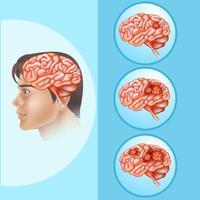 Diagrama mostrando câncer cerebral em humanos vetor