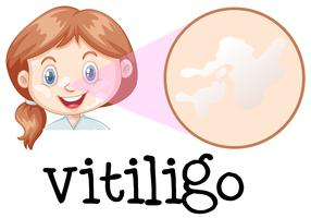 Um rosto de menina com vitiligo vetor