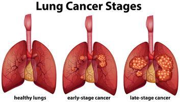 Diagrama mostrando os estágios do câncer de pulmão vetor