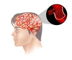 Câncer cerebral em humanos vetor