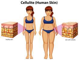 Uma comparação de mulheres com celulite vetor