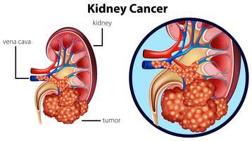 Diagrama mostrando câncer renal vetor